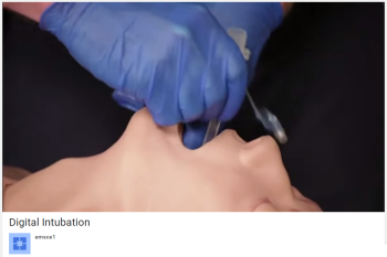 emsce Digital Intubation